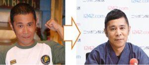 岡村隆史の薄毛治療後の比較
